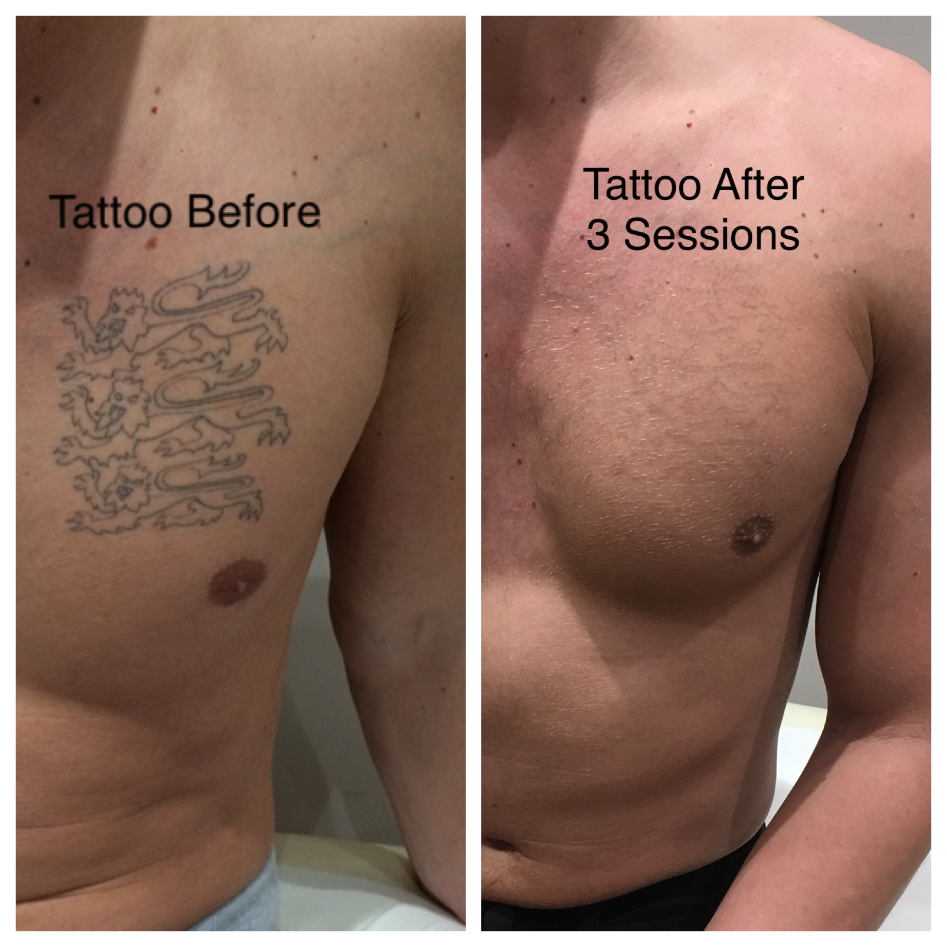 695c4e0da Tattoo Removal Treatment | Laser